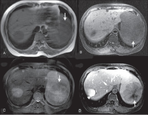 lca of spleen case 1 mri axial spin echo t1w a axial
