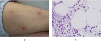 (a) Inflammatory nodules on thighs. (b) Panniculitis with eosinophils infiltration.