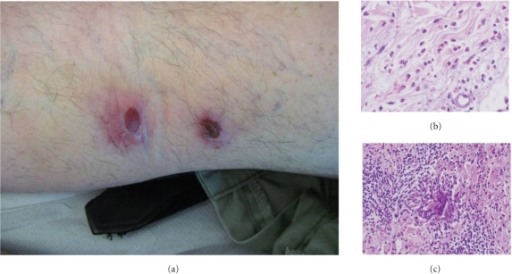 (a) Prurigo-like lesions with central crust mimicking arthropod bites. (b) Interstitial dermal infiltration composed by eosinophils. (c) Flame figures.