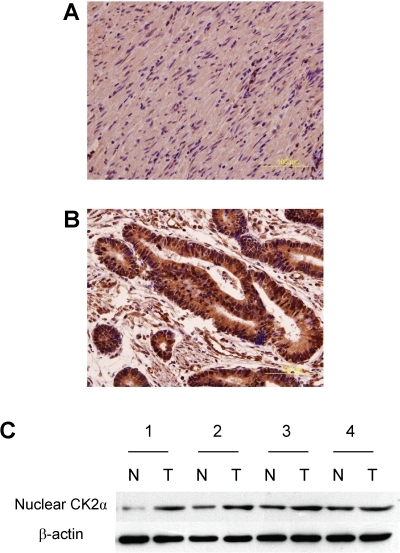 Expression of nuclear CK2α in colorectal tissues.Nuclear CK2α expression in non-tumor and tumor tissues, analyzed by                            immunohistochemistry, was shown in Panel A and                                B, respectively. Magnification: 400×. Panel                                C. Nuclear CK2α expression in four non-tumor/tumor pairs                            was examined by Western blot.