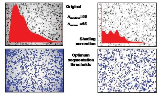 Example of influence of image standardization (shading correction) on the derived grey value histogram and accuracy of object segmentation (artificial image consisting of randomly distributed balls and fibers)
