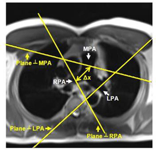 Planning of the pulmonary flow imaging planes. An axial slice showing the main, right, and left pulmonary arteries (MPA, RPA and LPA, respectively). Two planes are prescribed perpendicular to the flow direction in the pulmonary artery. Plane 1 is perpendicular to MPA, while plane 2 is perpendicular to LPA or RPA. The distance along the pulmonary artery between the two measuring sites (Δx) is used in calculating PWV.