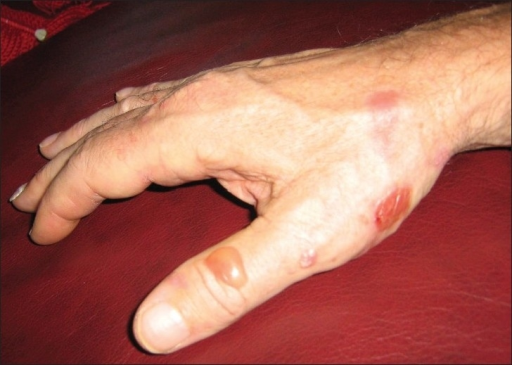 Bullous lesions on trauma prone areas of the hand. These lesions were approximately 4–5 days old