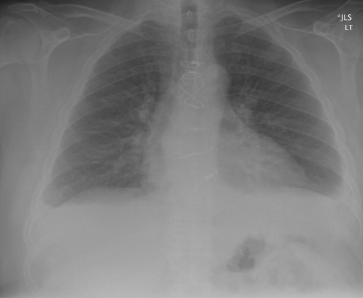 Chest xray, 2 views XXXX, XXXX