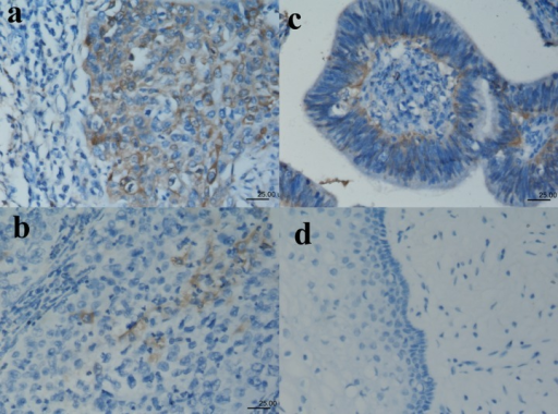 Immunoreactivity patterns of ALDH1 in cervical squamous carcinomas (A, B), adenocarcinomas (C) and normal epithelium (D). (A) Diffuse positive staining for ALDH1 in cervical squamous carcinomas. (B) Squamous carcinoma cells (<10%) show cytoplasmic staining for ALDH1. (C) Adenocarcinoma cells (<50% but ≥10%) show cytoplasmic staining for ALDH1. (D) ALDH1-negative staining in normal epithelium.