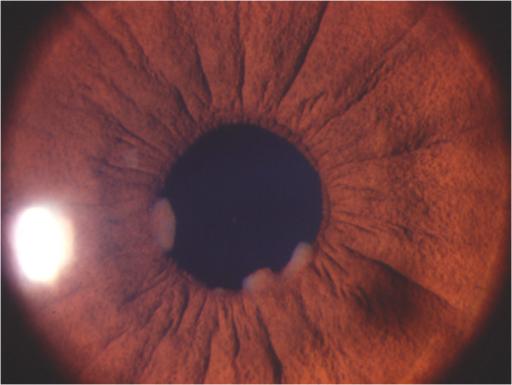 Slit lamp photograph showing the granulomatous anterior ...