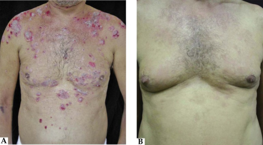 A. Patient with pemphigus vulgaris before the use of rituximab;B. Patient with pemphigus vulgaris after the use of rituximab