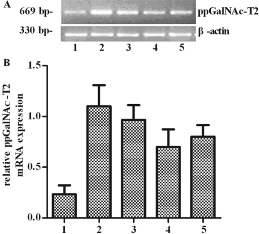 Expression of ppGalNAc-T2 mRNA in human tumor cells. (A) The mRNA level of ppGalNAc-T2was detected by RT-PCR. (B) The intensity of PCR product was normalized againstβ-actin. 1, SHG44 cells; 2, SGC7901 cells; 3, SHI-1 cells; 4, A549 cells; and 5,HO8910 cells.
