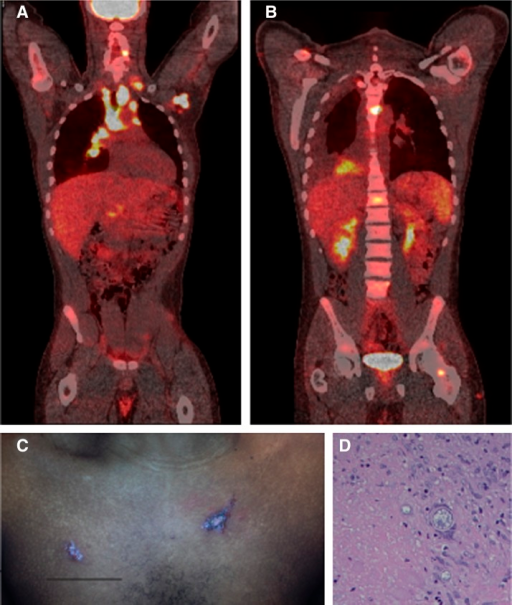 (A and B) Positron emission tomography. (A) Coronal section-anterior view; (B) coronal section-posterior view) of patient with coccidioidomycosis; noted tracer uptake in axillary and mediastinal lymph nodes, cervical and lumbar vertebrae, left ilium, and perineum. (C) Integumenal lesions on patient's anterior chest. (D) Hematoxylin and eosin (H&E) stain of left axillary lymph node biopsy showing Coccidioides spp. spherules within a granuloma.