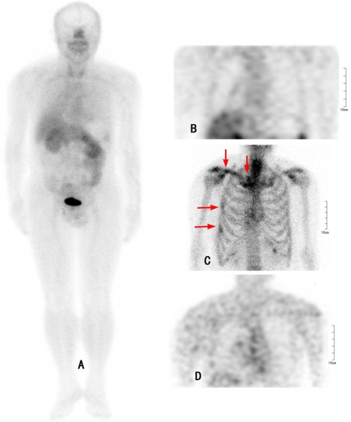 Comparison of 99mTc-3PRGD2 SPECT, 99mTc -MDP bone scan, and 18F-FDG PET in a 60 year-old patient with a recent fall-down trauma.The99mTc -MDP bone scan was positive (red arrows), whereas both 99mTc-3PRGD2 SPECT and 18F-FDG PET were negative. A: 99mTc-3PRGD2 WB (-), B: 99mTc-3PRGD2 SPECT (−), C: 99mTc-MDP bone scan (+), D: 18F-FDG PET (−). WB: whole body.