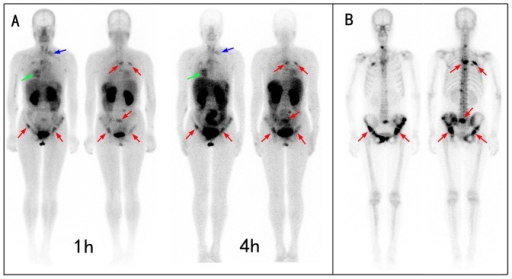 Comparison of 99mTc-3PRGD2 integrin receptor imaging with 99mTc-MDP bone scan in a patient with multiple bone metastases.A: The 99mTc-3PRGD2 imaging showed the lung cancer (green arrow), lymph node metastases (blue arrow), and bone metastases (red arrow) at the same time. The 1-h imaging is better than the 4-h imaging because of the relatively lower background in bone marrow, liver, and spleen. B. 99mTc-MDP bone scan demonstrated better contrast, facilitating the detection of small bone lesions. However, 99mTc-MDP accumulated for the bone repair with limited specificity, whereas 99mTc-3PRGD2 targeted the metastatic tumor directly.