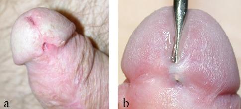 Anal fissure repair