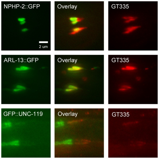 NPHP-2::GFP, ARL-13::GFP, and GFP::UNC-119 colabel with GT335 staining.In amphid channel and phasmid cilia, NPHP-2::GFP, ARL-13::GFP, and GFP::UNC-119 signals overlap with GT335 staining. ARL-13::GFP and GT335 staining overlap completely. NPHP-2::GFP does not overlap completely with GT335. TZ staining by GT335 is frequently visible, as in the NPHP-2::GFP overlay. Though the signal of GFP::UNC-119 is dim due to the staining procedure, GFP::UNC-119 appears not to overlap completely with GT335. Data is quantified in S6A Figure.