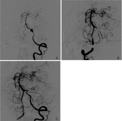 A 41-year-old female with acute SAH. A. Working projection of the left vertebral angiogram shows a dissecting aneurysm arising from the left vertebral artery proximal to origin of PICA. B. The dissecting aneurysm and affected left vertebral artery are completely occluded. C. Follow-up angiogram after 6 months reveals recanalization of the occluded left vertebral artery with a normal arterial configuration and antegrade flow into the basilar artery.