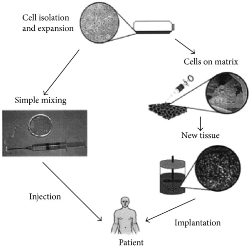 Schematic illustration of two approaches to engineer desired tissue. Cells are isolated from biopsy and mixed with scaffold materials. Subsequently the mixture system is injected into patients' body (left). Alternatively, isolated cells are cultured on a scaffold in vitro and implanted into desired place after the formation of new functional tissue (right). Reprinted (adapted) with permission from [42]. Copyright (2001) American Chemical Society.