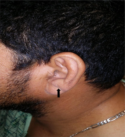 The arrow points to Frank's Sign, an oblique crease running from the tragus back towards the rear edge of the ear lobule.