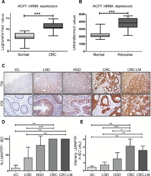 ACP1 mRNA and LMWPTP protein expression are increased in colorectal dysplasia and carcinoma as compared to non-dysplastic tissue(A, B) Using publicly available gene expression data from Affymetrix platforms, ACP1 expression (transcript 215227) was analyzed in carcinoma tissue (CRC) and adjacent normal colon tissue. Significantly higher expression of ACP1 mRNA expression was observed in carcinoma tissues (n = 17, P = 0.0005 by student's T-test). Gene expression array comparing ACP1 expression in colorectal adenoma to normal adjacent tissue shows increased ACP1 mRNA expression in cancer tissues (n = 32, P < 0.0001) (C). Tissues of patients with inactive ulcerative colitis (UC, n = 8), low grade dysplasia (n = 8), high grade dysplasia (HGD, n = 6), colorectal cancer (CRC, n = 12) and CRC liver metastasis (n = 5) were stained for LMWPTP by immunohistochemistry. Representative examples (10x and 40x magnifications) of UC, LGD, HGD, CRC and liver metastasis are shown. (D, E) LMWPTP staining was scored for percentage of positive intestinal epithelial cells as well as intensity of staining and statistical analysis was performed using Mann-Whitney t-test. (*P > 0.05; ** P > 0.01, *** P > 0.001).