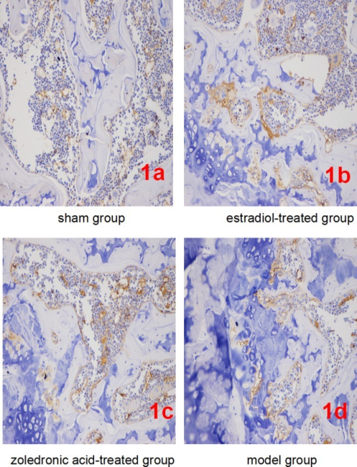 Expression of β-catenin in each group (IHC, ×400).(1a-1d) Representatives of β-catenin staining in bone tissue cells in sham/normal group (1a), ovariectomized osteoporosis associated with estradiol-treated group (1b), ovariectomized osteoporosis associated with zoledronic acid-treated group (1c), and ovariectomized osteoporosis model group (1d). All photomicrographs images at 400x magnification.