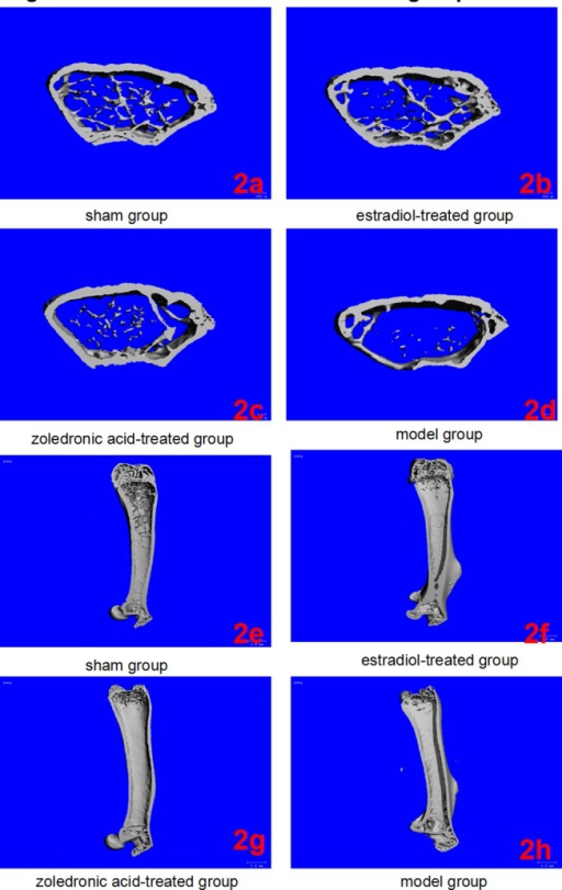 Micro-CT of left femurs in the four groups.(2a-2d) Three-dimensional images reconstructed from micro-CT analysis on the cortical and trabecular bone microarchitecture of distal femoral metaphysis (cross section) in four groups. (2e-2h) Three-dimensional images reconstructed from micro-CT analysis on the cortical and trabecular bone microarchitecture of whole left femur (longitudinal section) in four groups.