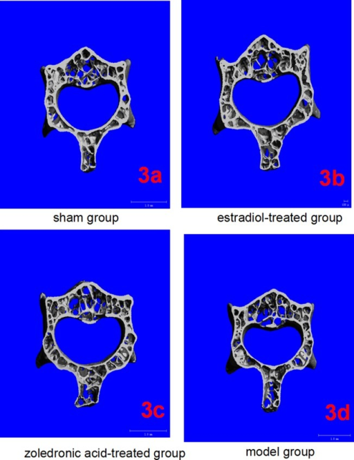 Micro-CT of lumbar vertebrae in the four groups.(3a-3d) Three-dimensional images reconstructed from micro-CT analysis on the cortical and trabecular bone microarchitecture of 3rd lumbar (cross section) in four groups.