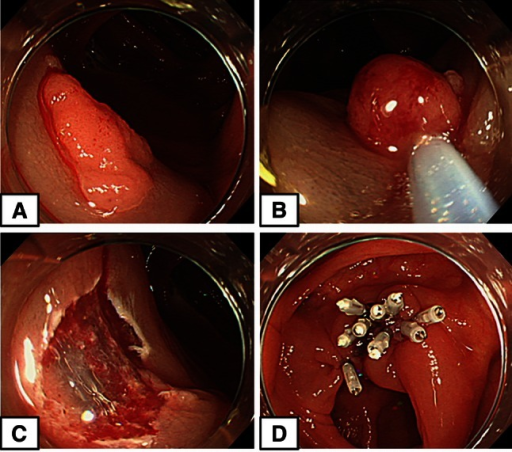 Clip closure group. A A 12-mm-diameter flat polyp in the ascending colon. B Resection of the polyp using a snare after local injection. C Blood vessels and bleeding on the cut surface. D Nine clips required to close the wound surface completely