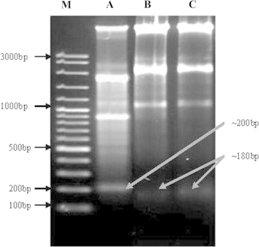 Gel electrophoresis of DNA samples isolated from HepG2 cancer cells following treatment with oleanolic acid. Cells were incubated with various concentrations of oleanolic acid for 72 h. M, 100 bp DNA ladder marker; lane A, HepG2 cells treated with 5 µM of oleanolic acid; lane B, HepG2 cells treated with 25 µM of oleanolic acid; and lane C, HepG2 cells treated with 50 µM of oleanolic acid. Each experiment was conducted in triplicate. DNA fragments were separated using 1.5% agarose gel electrophoresis and visualized under UV light following staining with ethidium bromide.