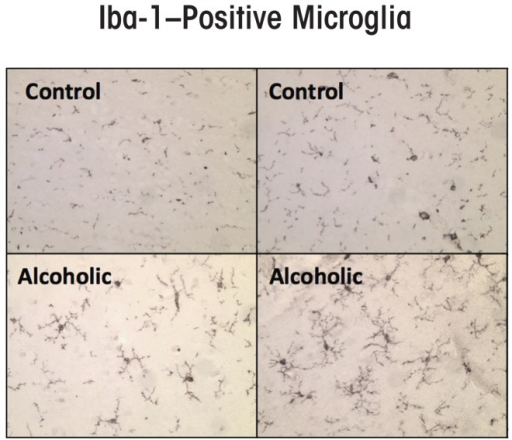 Microglial activation, as indicated by expression of the microglial marker Iba-1, is increased in postmortem alcoholic brain. The photomicrographs depict microglia from postmortem brain samples of alcoholics and control subjects. The number of Iba-1–positive microglia (dark stains) is higher in the alcoholic than in the control samples. SOURCE: He and Crews 2008.