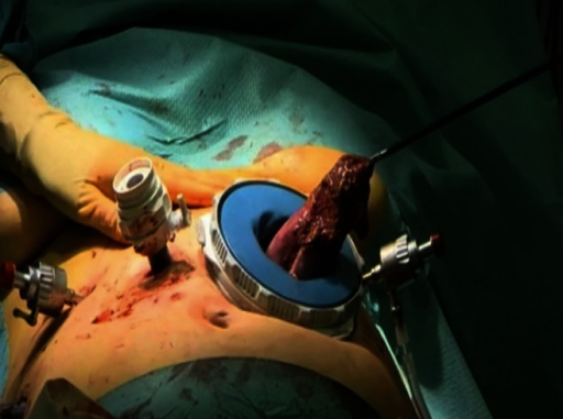 Removal of the gastric resection specimen through the Endopath DextrusTM access port
