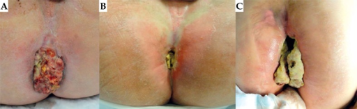 The clinical course for patient 1 is shown pictorially. On the left is the gross disease present at the time of IG-HDR treatment. Tumor burden 4.5 months after treatment is shown in the middle. Unfortunately, the patient had subsequent progression, resulting in bulky local recurrence, shown on the right at one year following IG-HDR