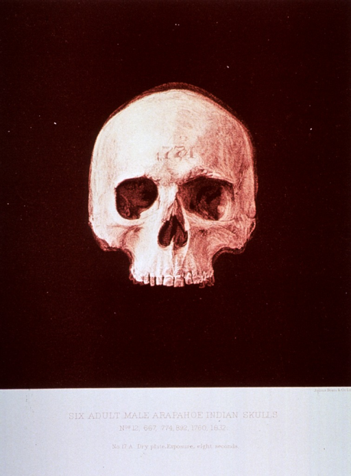 <p>Black and white print of one of 6 adult male Arapahoe Indian skulls. This print is no. 17a that appears in &quot;On composite photography as applied to craniology; on measuring the cubic capacity of skulls, memoirs of the National Academy of Sciences; volume 3, 13th memoir&quot; by J.S. Billings and Washington Matthews.</p>