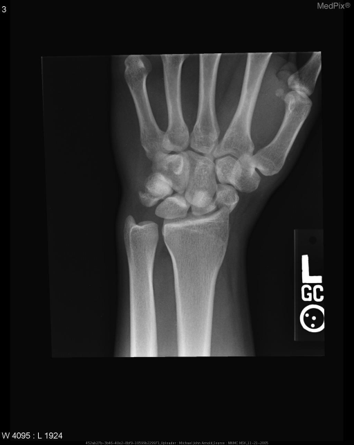 The AP radiograph demonstrated distracted fractures of both the triquetrium and the scaphoid at the waist.