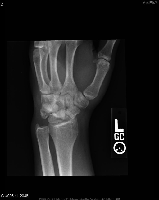 The oblique radiograph is less obvious than the AP radiograph in demonstrating the scaphoid and triquetral fractures.