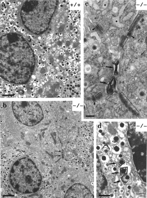 N-CAM-deficient  mice exhibit ultrastructural  alterations in islet cells. Electron photomicrographs of islets from control (a, +/+)  and homozygous (b–d, −/−)  animals. Because the ultrastructural changes were the  same in heterozygous and  homozygous mutants, only  the data from the homozygous mice is shown. In b, and  at higher magnification in c,  clustering of cell–cell junctions, including desmosomes  (arrowheads in c) and adherens type junctions (brackets in c), between four β cells  are shown. In b three β cells  contain a diminished number  of secretory granules. Arrows in b-d indicate accumulation of residual bodies. In d  residual bodies contain secretory granules. Dilation of  rough endoplasmic reticulum  was observed in β cells (asterisks in c) and α cells (data  not shown). Bars: (a) 1 μm;  (b) 2 μm; (c and d) 0.5 μm.