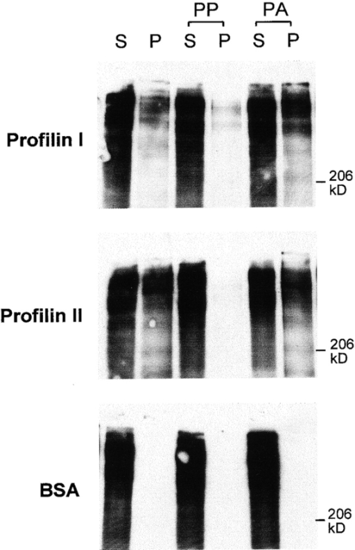 Aczonin binds profilin. Recombinant profilins I and II covalently coupled to Sepharose precipitate aczonin from mouse brain lysate (S, supernatant; P, pellet). Profilin binding is blocked by preincubation of the profilin resin with polyproline (PP), but not by polyalanine (PA). Immobilized BSA as a negative control does not precipitate aczonin. See Results for additional control experiments not shown.