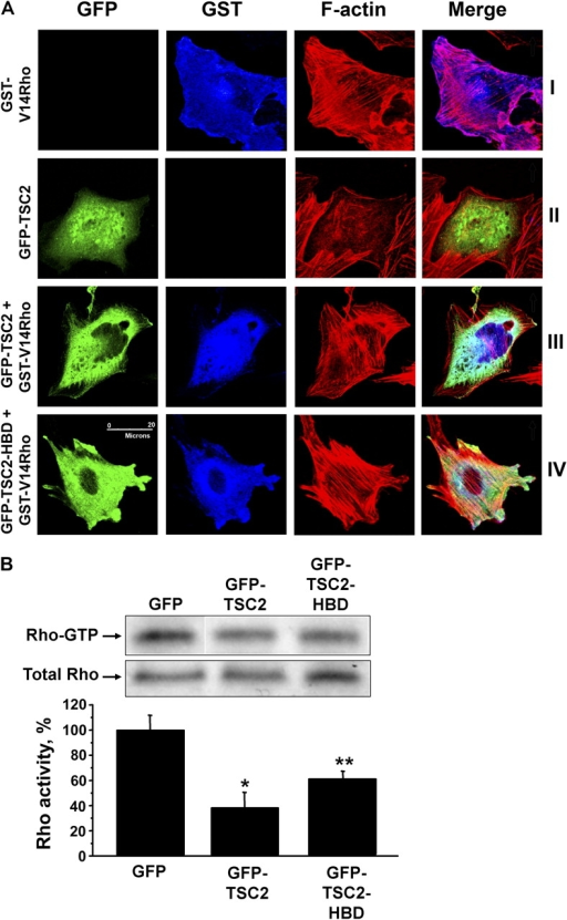 TSC2 and TSC2-HBD inhibit Rho activity in TSC2−/− cells. (A) TSC2−/− cells were transfected with pEBG-V12Rho or GFP-TSC2; GFP-TSC2 was cotransfected with pEBG-V12Rho plasmids; or pEGFP-TSC2-HBD was cotransfected with pEBG-V12Rho plasmid; and then cells were stained with anti-GFP to detect GFP, GFP-TSC2, or GFP-TSC2-HBD (green), anti-GST to detect GST, or GST-V12Rho (blue) and rhodamine phalloidin to detect F-actin (red). Images are representative of three independent experiments. Bar, 20 μm. (B) Cells were transfected with pEGFP-TSC2, pEGFP-TSC2-HBD, and control pEGFP plasmids expressing GFP-tagged TSC2, GFP-TSC2-HBD, and control GFP, respectively, and then Rho activity assay was performed. Immunoblot analysis of Rho-GTP pull-down with Rhotekin-RBD agarose (top) and whole cell lysates (bottom) was performed with anti-Rho antibodies. White lines indicate that intervening lanes have been spliced out. Quantitative analysis of three independent experiments was performed using Gel-Pro Analyzer Software. *, P < 0.001 for GFP-TSC2 versus GFP; **, P < 0.001 for GFP-TSC2-HBD versus GFP by ANOVA (Bonferroni-Dunn test).