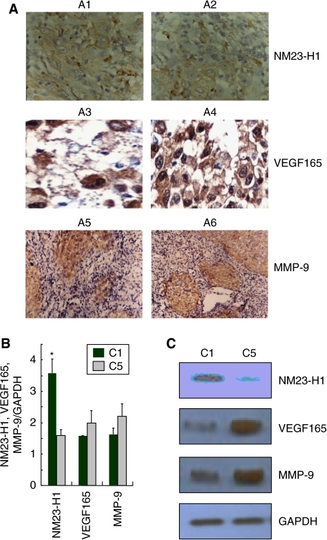 Validation of NM23-H1, VEGF165 and MMP-9 expression in the tissue samples of primary focus of NPC. (A) Validation with IHC (H&E, × 10). A1, A3, A5: NPC tissues with no invasion; A2, A4, A6: NPC tissues with intracranial invading signs. (B) Validation by the quantitative real-time PCR. Glyceraldehyde 3-phosphate dehydrogenase served as control. Relative mRNA levels of NM23-H1, VEGF165 or MMP-9 mRNA/GAPDH are expressed as the relative abundance. C1: NPC tissues with no invasion, C5: NPC tissues with intracranial invading signs. (C) Validation with western blot. Tissues lysates from two groups were subjected to western immunoblotting with anti-NM23-H1, VEGF165 or MMP-9 antibody, and blot was reprobed with anti-GAPDH to verify equal loading.