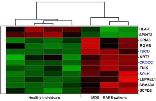 Differentially expressed transcripts in stromal cells of MDS-RARS patients and healthy individuals. The panel shows the expression matrix of 12 significantly differentially expressed genes in stromal cells of MDS-RARS patients compared to healthy individuals (SAM FDR <5% and fold change ≥1.7). Each row represents a single gene (9 protein-coding genes with names in black, and 3 ncRNAs in blue) and each column represents a separate stromal donor sample. Donor samples were clustered according to the correlation of expression profiles using the Unweighted Pair-Group Method, which resulted in two homogenous groups: MDS-RARS patients (3 columns at right) and healthy individuals (4 columns at left). Expression level of each gene is represented by the number of standard deviations above (red) or below (green) the average value for that gene across all samples. In MD-RARS patients, a total of 10 genes were up-regulated and 2 down-regulated.