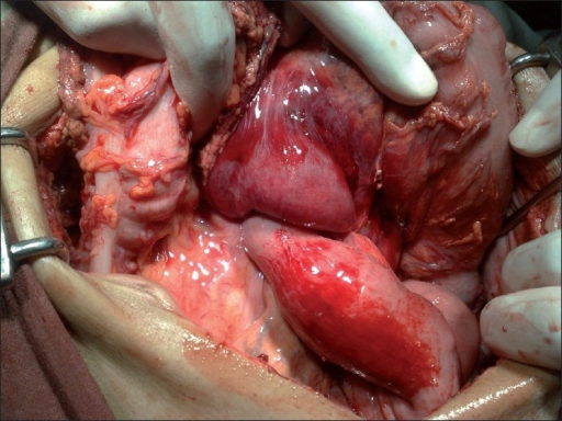Intussuscepting the efferent jejunal limb into the stomach before gastrotomy incision is made