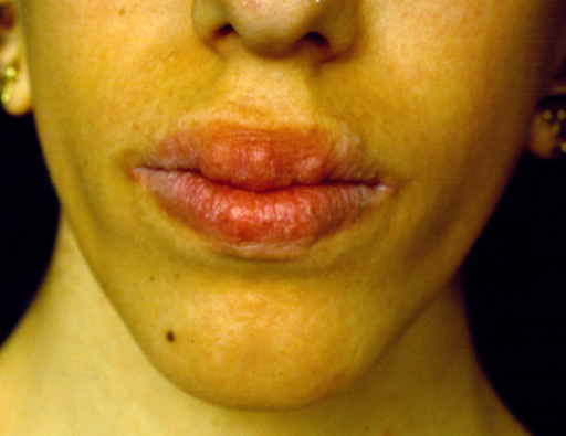 Characteristic phenotype of MEN 2B including thickened lips with bumps.