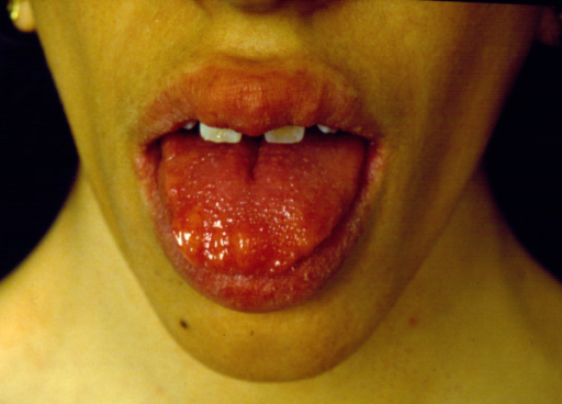 Multiple pseudo-polyps and bumps on the tongue. The lesions are mucous ganglioneurofibromas and ganglioneuromas.