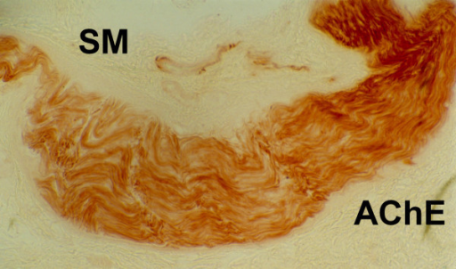 Enzymo-histochemical studies of MEN 2B intestinal innervation performed by acetylcholinesterase on suction rectal biopsies: giant ganglioneurofibroma. SM = submucous layer; AChE = acetylcholinesterase.