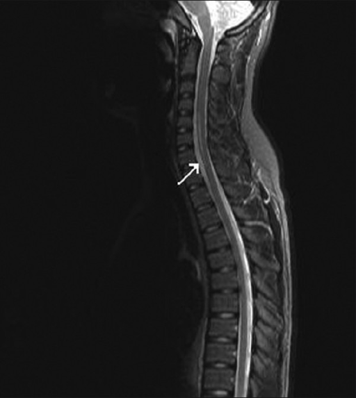 Linear high signal within the spinal cord extending from C4/C5 to C7 levels in keeping with acute spinal cord infarction