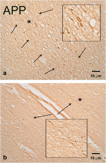 APP (+) axonal abnormalities in the frontal lobe of a representative patient without history of blast who died as a result of opiate overdose (Case 9, Table1). Although there are occasional clusters of axonal swellings (arrows, a), most cases of observed abnormalities are less conspicuous (arrows, b). Insets represent magnifications of areas marked with an asterisk. Size bars: 10 μm.