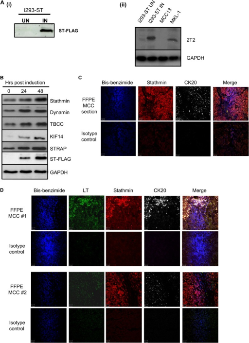 MCPyV ST expression leads to the differential expression of proteins involved in microtubule-associated cytoskeletal organization and dynamics. (A) (i) i293-ST cells were grown in DMEM with R0K0 and induced (IN) for 24 h or grown in DMEM with R6K4 and remained uninduced (UN). Cell lysates were analyzed by immunoblotting with a FLAG-specific antibody. (ii) To confirm that induced levels of MCPyV ST in i293-ST cells are representative of ST expression in the MCPyV-positive MCC cell lines, immunoblotting was performed using an MCPyV T-specific antibody comparing cell lysates from 1 × 105 cells of uninduced and induced i293-ST, MCC13, and MKL-1 cells. (B) i293-ST cells remained uninduced or were incubated for either 24 or 48 h in the presence of doxycycline hyclate. After induction, cell lysates were analyzed by immunoblotting using a FLAG-specific antibody and a range of microtubule-associated-specific antibodies highlighted by quantitative proteomic analysis. GAPDH was used as a measure of equal loading. (C) FFPE sections of a primary MCC tumor were stained with stathmin- and CK20-specific antibodies or an isotype negative control. After washing, sections were incubated with Alexa Fluor-labeled secondary antibodies. Nuclear staining was performed with bis-benzimide. Slides were then analyzed using a Zeiss LSM 510 confocal laser scanning microscope. (D) FFPE sections of two additional primary MCC tumors were stained with stathmin-, MCPyV LT-, and CK20-specific antibodies or an isotype negative control. After washing, sections were incubated with Alexa Fluor-labeled secondary antibodies. Nuclear staining was labeled using bis-benzimide. Slides were then analyzed using a Zeiss LSM 510 confocal laser scanning microscope.