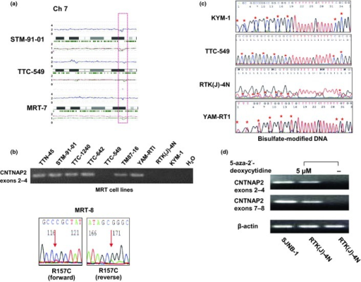 Recurrent deletions of chromosome 7q35–q36 and CNTNAP2 alterations in malignant rhabdoid tumor (MRT). (a) Deletions of chromosome 7q35–q36 in three specimens detected by single nucleotide polymorphism (SNP) array. For each panel, total copy numbers (tCNs; red dots), moving averages of tCNs for five consecutive SNPs (blue line), an ideogram of the relevant chromosome, location of heterozygous SNP calls (green bars), and allele-specific copy numbers (AsCNs) averaged for five consecutive SNPs (red and green lines for larger and smaller alleles, respectively) are plotted. (b) Expression and mutation analyses of MRT. Upper panel shows RT-PCR analysis of CNTNAP2 in nine cell lines. Sequence chromatogram of R157C missense mutation detected in a fresh tumor, MRT-8, is shown in the lower panel. (c) Bisulfate modification- and methylation-specific PCR for CNTNAP2 in cell lines. Hypermethylation of CpG islands in KYM-1, TTC-549, and RTK(J)-4N cell lines is shown in the upper panel. The lower panel shows control. CpG islands are marked by asterisks. (d) Representative results of re-expression of transcriptionally silenced CNTNAP2 after treatment with 5-aza-deoxycytidine in MRT cell lines. Reverse transcription-PCR analysis of KYM-1 cell line harvested following 72 h of incubation with control media (−) and 5 μM 5-aza-2-deoxycytidine (+). SJNB-1 neuroblastoma cell line, which expressed abundant CNTNAP2, was used as a positive control.