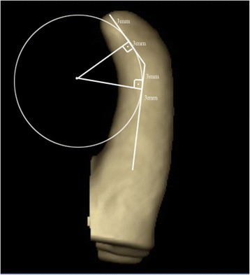 Three-dimensional CBCT images showing the measurement of root curvature.