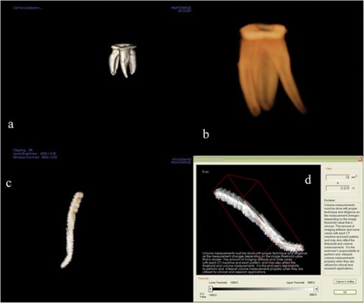 Three-dimensionally using the 3D Invivo software (ver. 5.1.2., Anatomage, San Jose, CA). a,b. 3D reconstruction of tooth, c. subtracted root canal, d. The volume of the root canal was measured.