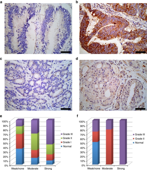 Analysis of human colon and prostate cancer tissues for Y160 phosphorylation.Using the pY160 antibody IHC was performed on multi-tumours tissue microarray of 95 samples with 40 types of tumours from 27 organs. (a) Weak or no staining for Grb2 Y160 phosphorylation in grade I colon adenocarcinoma. (b) Strong staining for Grb2 Y160 phosphorylation in grade III colon adenocarcinoma. (c) Weak or no staining for Grb2 Y160 phosphorylation in grade II prostate adenocarcinoma. (d) Moderate staining for Grb2 Y160 phosphorylation in grade III prostate adenocarcinoma. A significant increase in the level of pY160 phosphorylation is seen in higher-grade tumour samples. The bars on a–d correspond to 50 μm. (e) The pY160 antibody staining patterns for 118 colon cancer tissue samples. The samples were scored according to the pY160 staining as weak or none, moderate and strong and plotted against tumour grade as percentage. Data compiled from normal tissues (n=42), and tumours grade I (n=28), grade II (n=34) and grade III (n=14) which shows a progressive increase in the strength of pY160 staining with higher tumour grade. (f) The pY160 antibody staining patterns for 42 clinical prostate cancer tissue samples with the relative staining patterns for pY160 antibody. As above, samples were scored, sorted and plotted against tumour grade as percentage. Normal and/or hyperplasic tissue (n=15), tumour grade II (n=13) and grade III (n=14). Here the pY160 staining is only associated with malignant tumours and intensity of staining is increased in tumours with a higher level of malignancy.