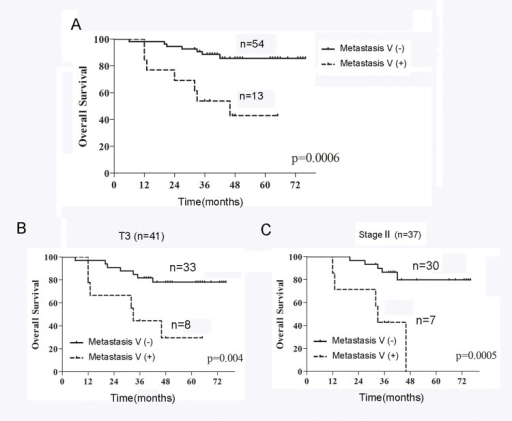 The overall survival of patients with or without Metastasis V.(A) The Kaplan–Meier overall survival curves showed the prognosis of Metastasis V-positive patients was significantly (P = 0.006) worse than Metastasis V-negative patients. (B-C) Metastasis V-positive patients had a significantly poorer prognosis than Metastasis V-negative patients in the T3 subgroup (P = 0.004; B) or in clinical stage III (P = 0.0005; C).