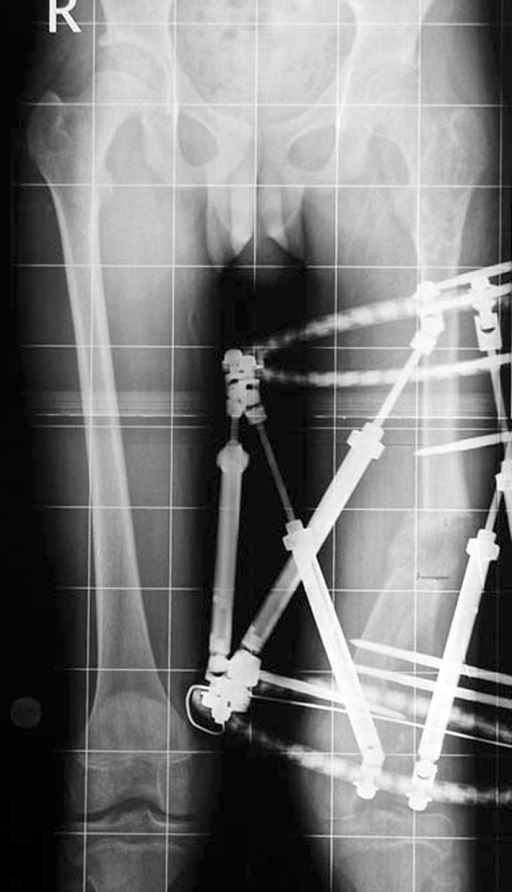 After correction and lengthening with good regenerate (note the amount of translation as the osteotomy site is not at the CORA)